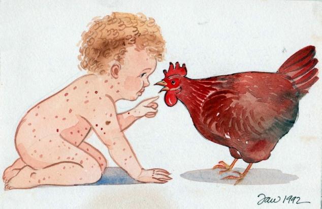 chickenpoxweb